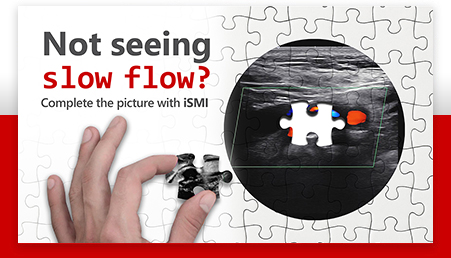 Not seeing slow flow? Complete the picture with iSMI.