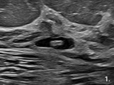 hyromark ultrasound image