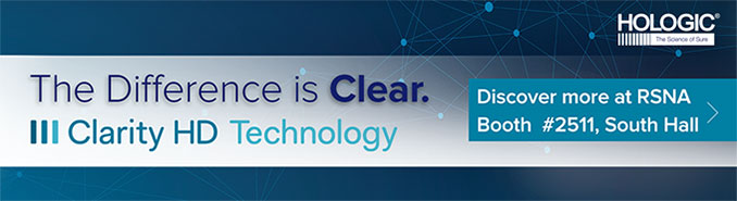 The Difference is Clear. Clarity HD Technology